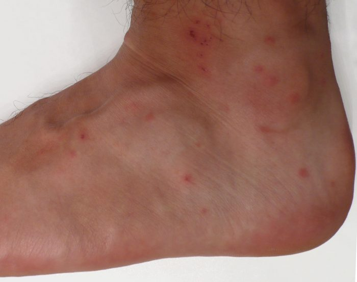 what do bed bug bites look like 7 bite symptoms with. Black Bedroom Furniture Sets. Home Design Ideas