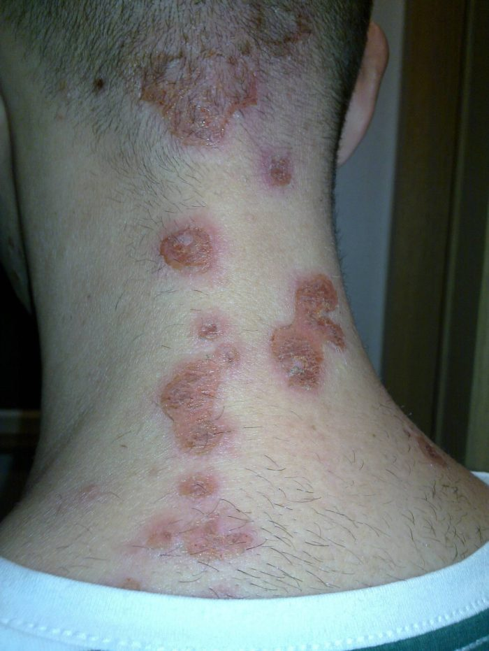 untreated bed bug bite