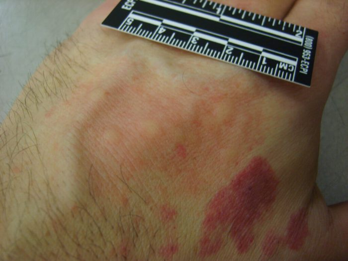 What Do Bed Bug Bites Look Like | 7 Bite Symptoms with Pictures