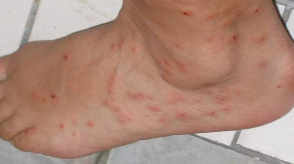 What do Flea Bites Look Like on Humans with Symptoms ...