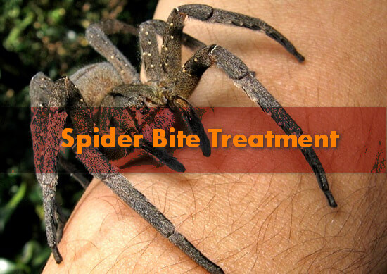 Spider bite treatment