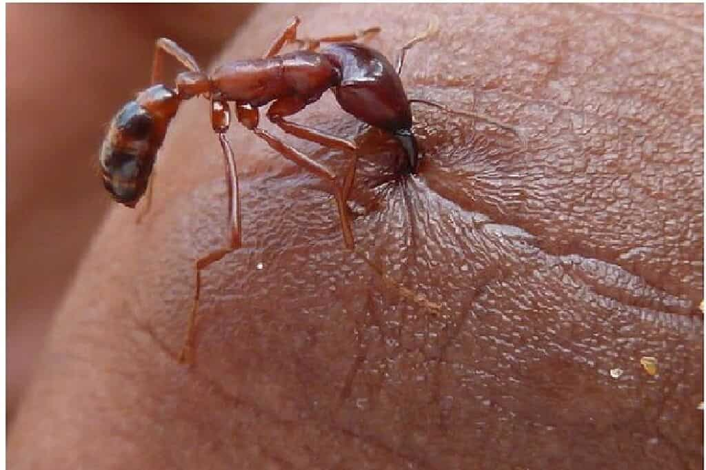 Red Ant Bites 8 Ways To Treat Easy Home Remedies Mvp