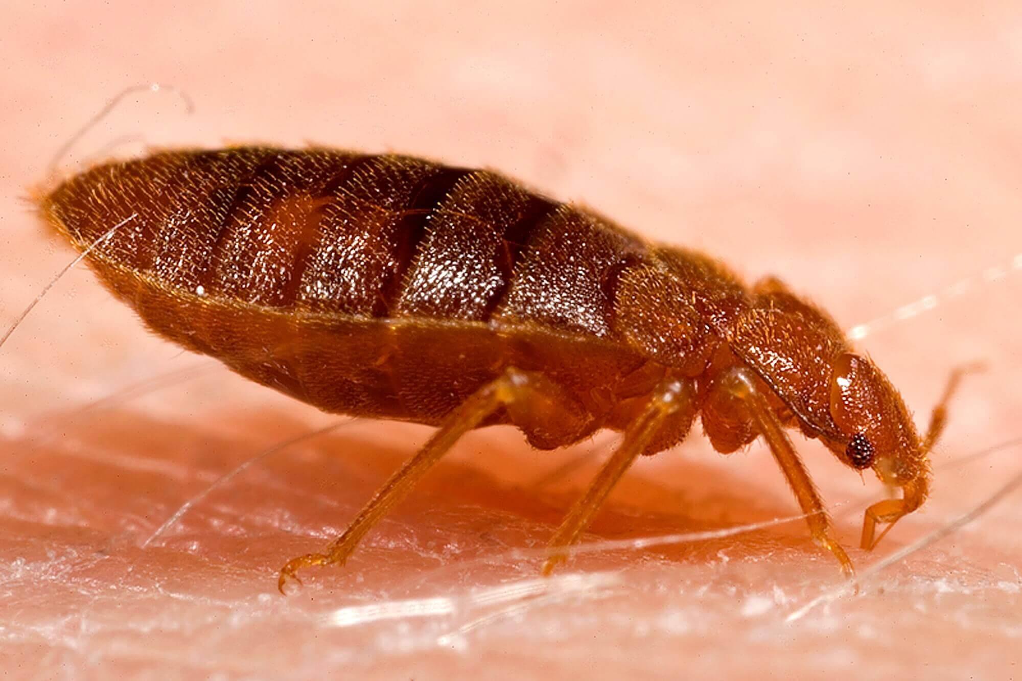 Bed Bug bite